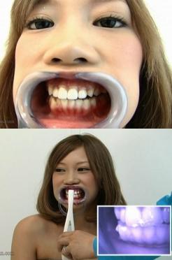 強制口開器★美女の咀嚼&喉チンコ