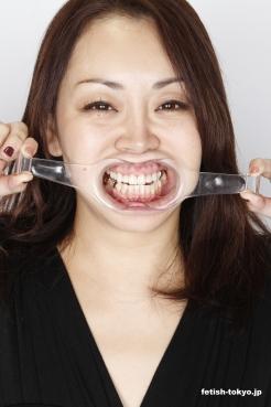 美熟女あおいの銀歯・処置歯! 口内観察!