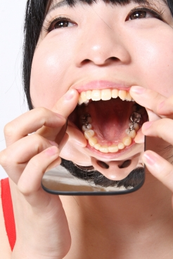 安達まどか 2014年 銀歯増えました