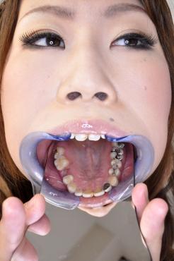 歯、観察【濱田千尋 編】