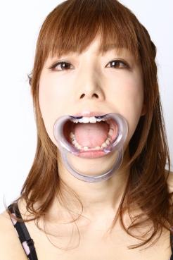 浅見友紀 三井ゆかり 口内「歯」写真集2名分