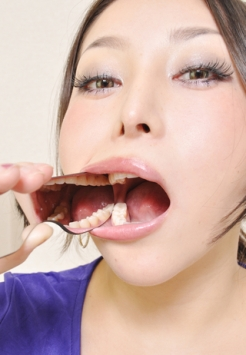 天然歯の写真集【2名分54枚】