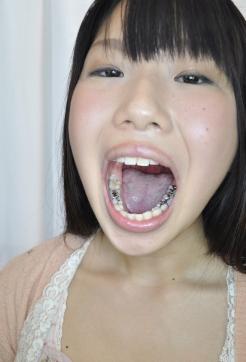 銀歯娘 聖菜ありさちゃんの歯観察