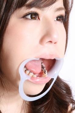 総選挙2位の飯田せいこちゃんの銀歯!