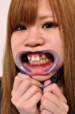 銀歯 八重歯 小倉めい