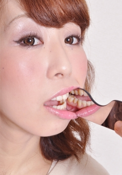 谷村みなみちゃんの歯