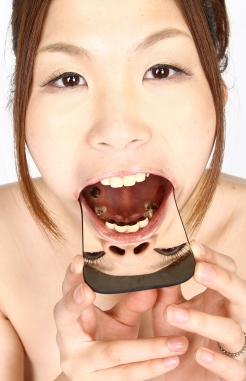 撃滅 赤木かりんちゃんの崩壊歯