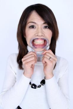 安田清美さんの歯観察