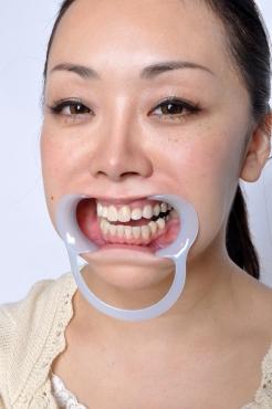 葵さんがまた歯を見せに来てくれました