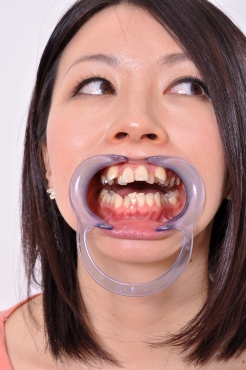 銀歯&八重歯 夏帆