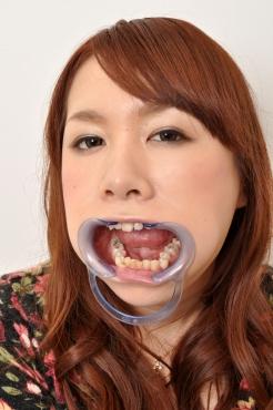 ミハルさんの歯