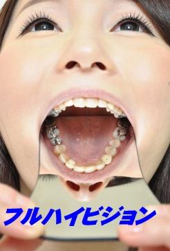 歯観察ちなつサン