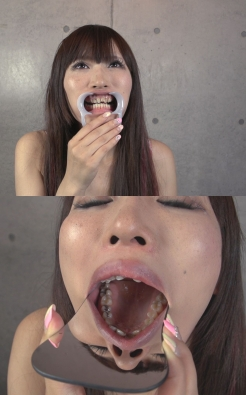 LinoA 汚れと歯並びが