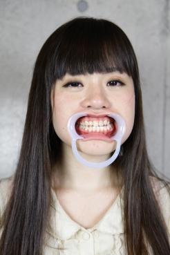るのはちゃんの歯観察