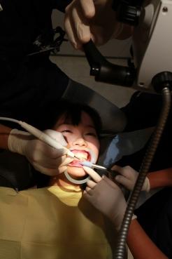 【歯科医師治療映像】年齢の割りに大量の歯石がこびりついたフリーターの歯石除去治療【特選画像53枚付】