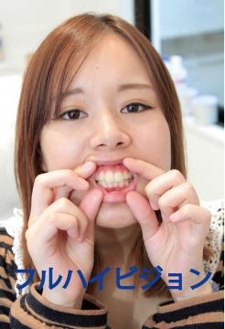 フルハイビジョン【衝撃!!口内に異物が埋まってる…】詩織ちゃん歯科治療