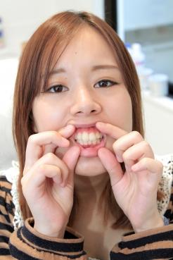 【衝撃!!口内に異物が埋まってる…】詩織ちゃん歯科治療