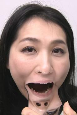 銀歯たっぷり角倉さんの歯観察