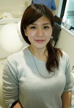 【銀歯虫歯治療】美少女北澤舞(25歳)銀歯2箇所埋め込み治療