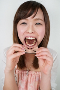 エリナちゃんの歯観察 『左上5番:涙の崩壊歯』