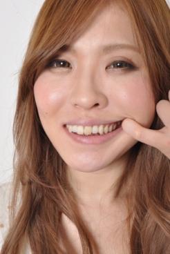 歯観察 山咲さくらちゃん