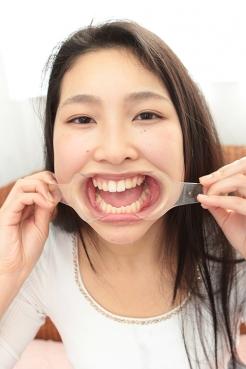 天然系美少女みほちゃんは歯も天然