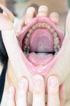 虫歯菌に侵された歯 夏帆(20)