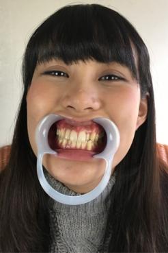 篠岬ことみちゃんの歯観察&歯磨き