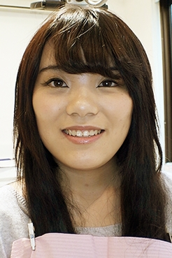 佐川はるみ(23)【歯科医師治療映像】右下7番銀歯外しセラミック装着