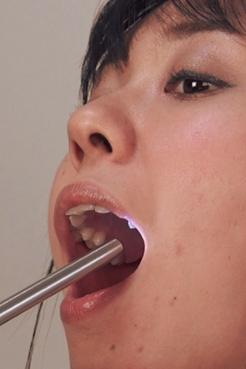 最悪の歯並びを持つまりかちゃん【内視鏡カメラ】での迫力ある映像との二本立て!