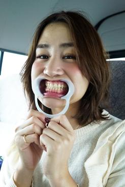 杉村さよこ(25)【歯科治療映像】セラミック二次カリエス掘削!