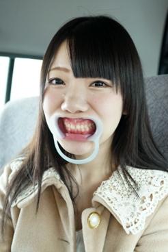 柏木茉奈(20)【歯科治療映像】集中治療でインレー3本&先天性欠如歯