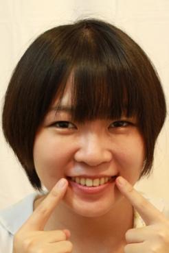 石川みなみ(26)【歯科治療映像】一挙に3本治療します。銀歯2本も輝いてるよ!