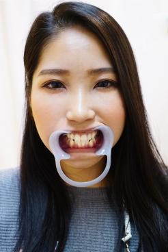 まこと(23)【歯科治療映像】ついに抜髄の撮影に成功しました!
