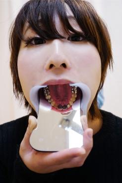 あおい(24)【歯科治療映像】なんと銀歯12本のつわものの根幹治療!