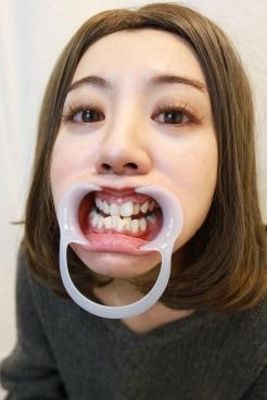 るみ(34)【歯科治療映像】6年以上放置したビッチリこびり付いた歯石と虫歯3本発見!
