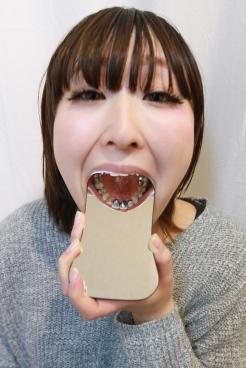 あおい(24)【歯科治療映像】フルメタルクライン装着までの衝撃の4日間!