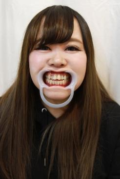 めぐみ(25)【歯科治療映像】3連続インレー装着と前歯6本の掘削映像!
