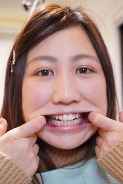 安田ななは(20)【歯科治療映像】約10年ぶりの治療に麻酔無しで挑むが・・・まさかのお蔵入りか!?