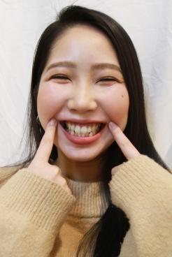 まこと(23)【歯科治療映像】容赦しません!4本連続虫歯掘削&抜髄に悲痛な表情!!