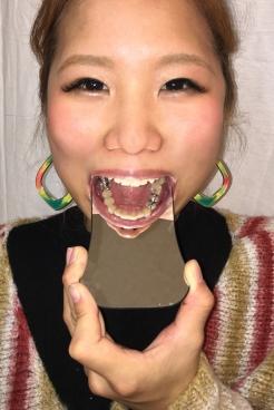 かずみ(25)【歯科治療映像】銀歯左右下6番を麻酔無し治療!母は強し!!