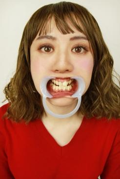 歯観察 ルミ