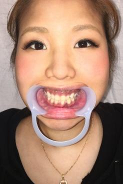 かずみ(25)【歯科治療映像】産後やっとレントゲン!予想以上の崩壊歯に治療方針変更か!?