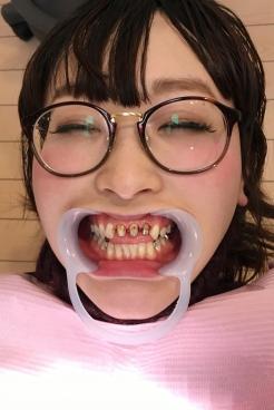 あおい(24)【歯科治療映像】前代未聞の上前歯3本連続フルメタルクラウンへ始動開始!