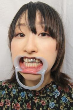 あおい(24)【歯科治療映像】女神降臨!上前歯3本連続FMC装着!他では絶対に見れない最初で最後のコレクション保存版!