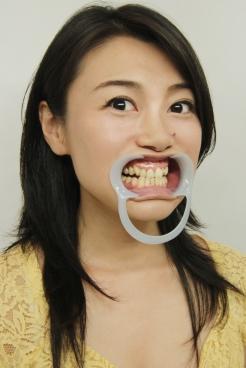 中島京子(35)【歯科治療映像】歯茎からの出血に歯石除去&顎関節症対策でマウスピース作製!
