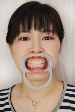 伊達麻里子(28)【歯科治療映像】7~8年ぶりの歯医者さんで左上下5番の2本がインレーに!!