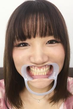 【歯】歯観察 天然歯と思いきや虫歯が!佐々木ひなこ