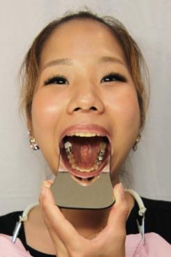 かずみ(25)【歯科治療映像】恐ろしく長いメタルコアの出現!そしてインレー装着映像も収録!!