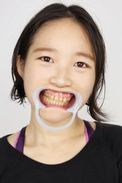 御前珠里(30)【歯科治療映像】右上123・左上12番の5連続の虫歯を一気に成敗!